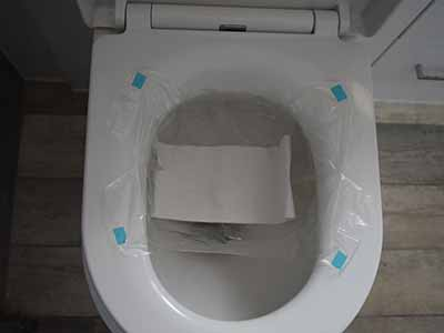stool sample test bag fitted to toilet seat